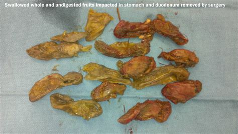 undigested food in bowel movements picture 4