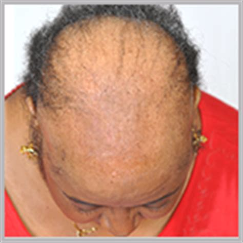 african american women thinning hair solutions picture 3