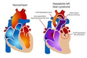 120 60 blood pressure picture 17