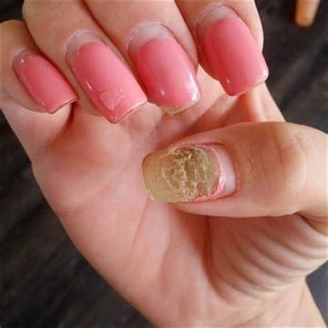 acrylic nail fungus picture 11