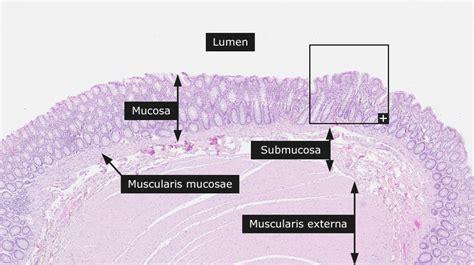 fat cells in the sigmoid colon picture 4