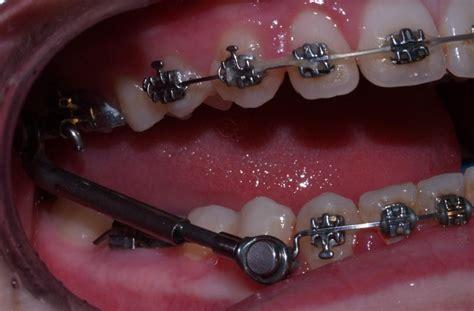 braces 20 h picture 7