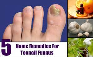 natural remedy nail fungus picture 3