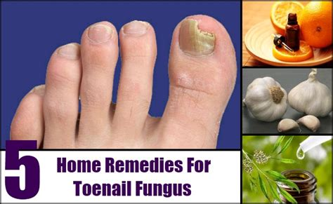 remedies for toenail fungus+ painting toenails picture 4