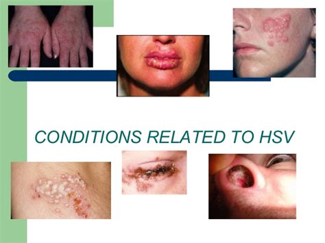 exposure to herpes simplex 2 picture 5