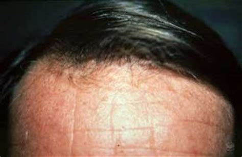 dermatologist shots that cause problems in men picture 6