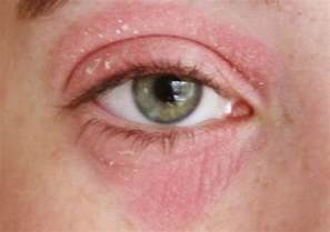 skin allergy around eyes picture 1