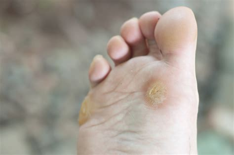 wart remval picture 5