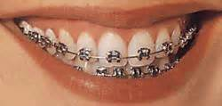 all cinds of teeth grizs gold and silver picture 6