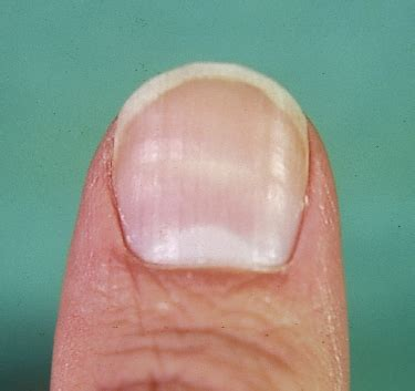 white line in nail picture 3