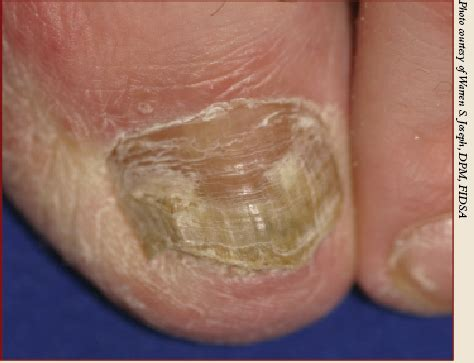 fungal infection of the skin picture 13