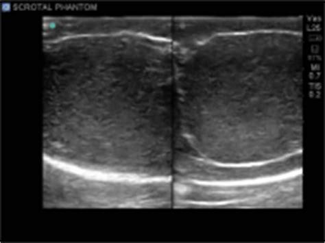 orgasm during testicular ultrasound picture 9