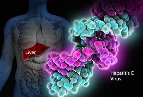 what are common diseases of the liver picture 13