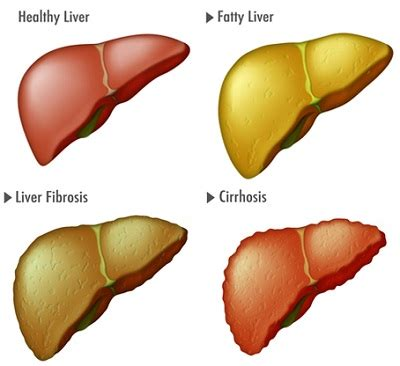 how to repair cirrhosis of the liver picture 5