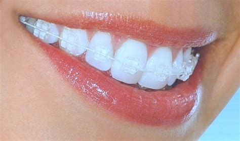 clear teeth brace picture 7