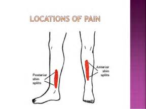 are side sches & leg cramps symptoms of picture 1