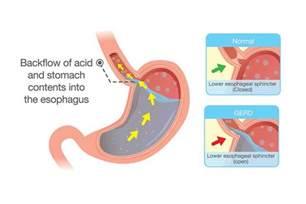 dysphagia cause acid reflux picture 9