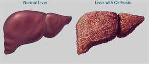 pictures of cirrhosis of the liver picture 9