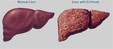 cirrhosis liver life span picture 18