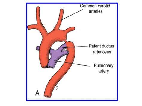 bladder exstrophy picture 14