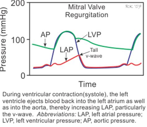 can mitral valve regurgitation may blood pressure low picture 1