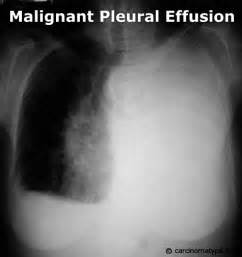 natural care of pleural eff picture 14