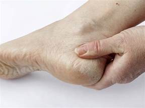 itchy skin and liver disease picture 7