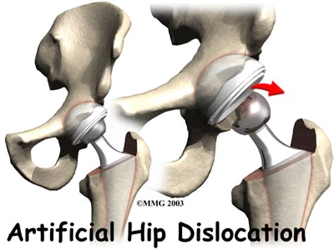 hip joint slipping out of place picture 2