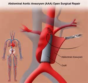 Aneurysm highl blood pressure picture 14
