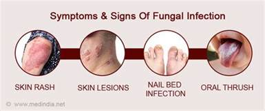 yeast infection and symptoms picture 10