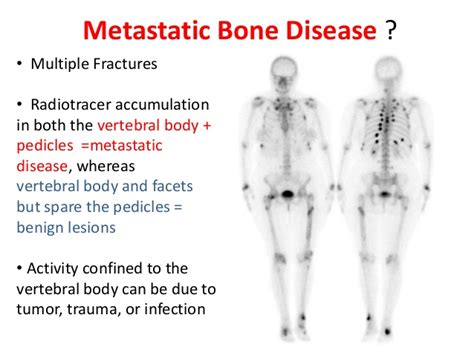 can a fungal infection resemble metastatic cancer picture 1