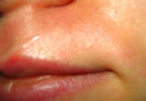 spots where upper lip hair removed picture 11
