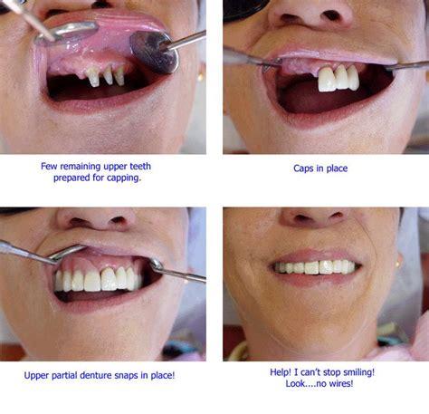 false teeth permenant picture 2