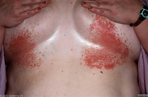 breast skin infections picture 1