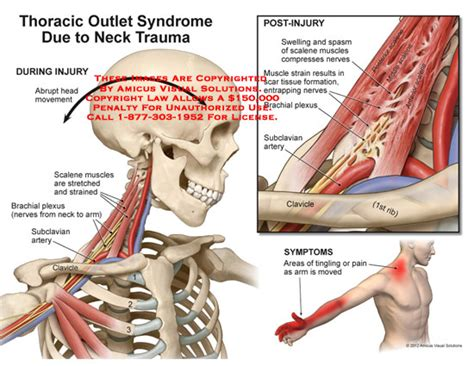 fibromyalgia pain relief picture 11