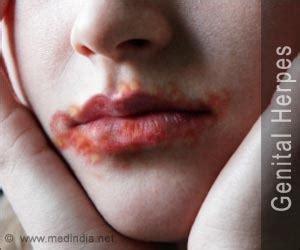 fenugreek herpes picture 19