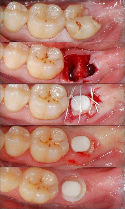 discount dental plans for wisdom teeth removal picture 10