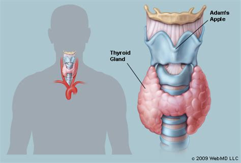 where's hypothyroidism located on the picture 10