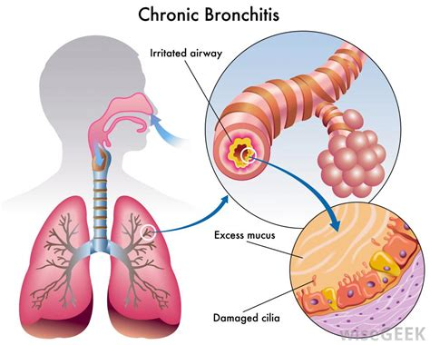 can you get chronic bronchitis if you don't smoke picture 5