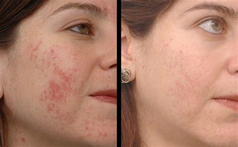 acne treatment aloe free picture 3