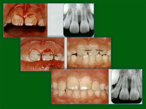 children and trauma to teeth picture 9