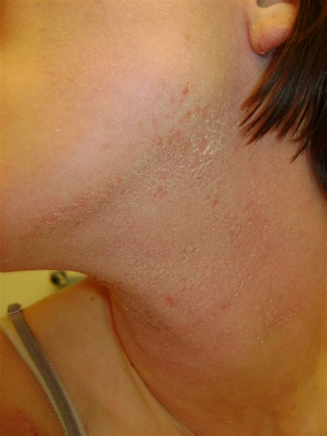 about dry skin picture 19