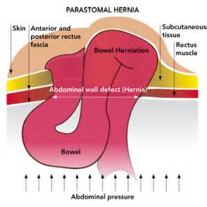 hernia pressing on the bowels picture 3