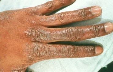 dry patches on toddler skin picture 1