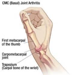 basilar joint arthritis picture 1