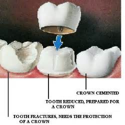crown for teeth picture 9