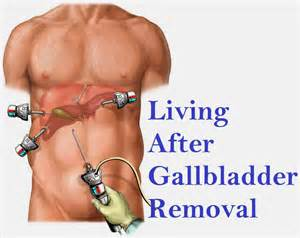 life after gall bladder surgery picture 5
