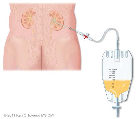 percutaneous drainage of bladder picture 10