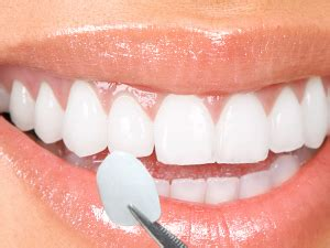 dentist porcelin teeth picture 6