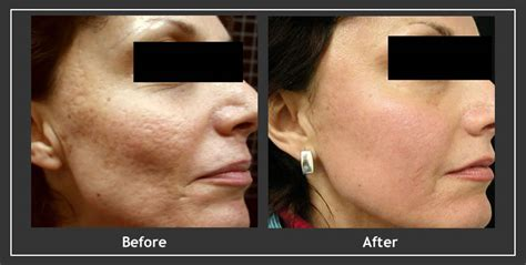is sculptra for acne scares picture 15